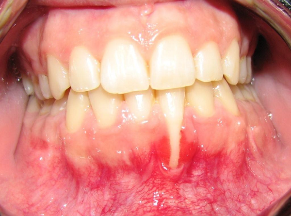 Before-Full coverage of indigenous roots in advanced gingival analysis