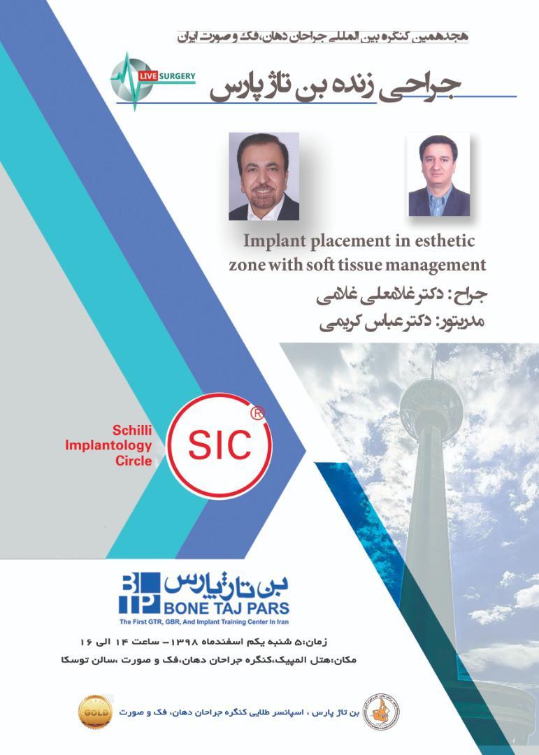 هجدهمین کنگره بین المللی جراحان دهان، فک و صورت ایران – جراحی زنده توسط دکتر غلامی