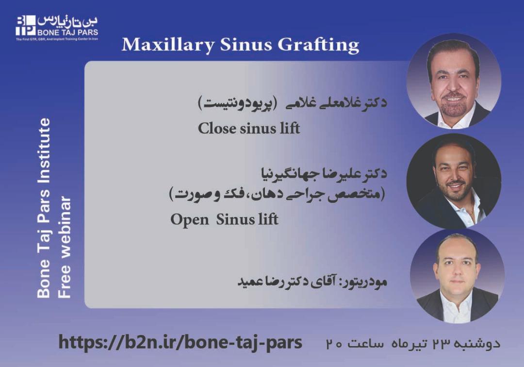 وبینار Maxillary Sinus Grafting – تاریخ برگزاری 23 تیرماه 99