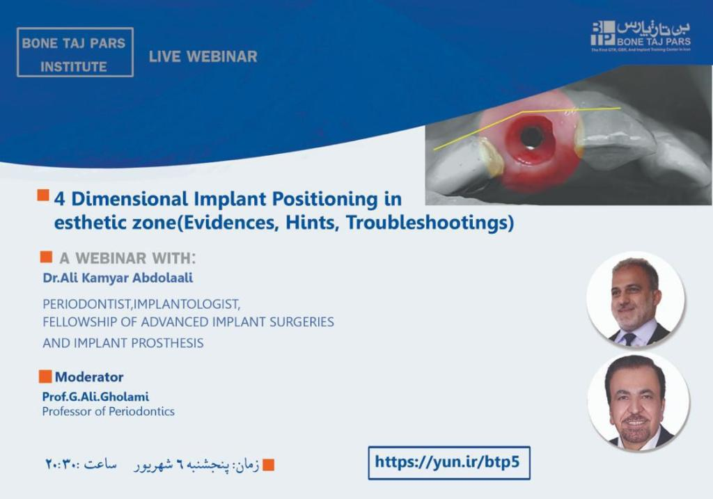 4Dimensional implant positioning in esthetic zone (Evidences,Hints,Troubleshooting)